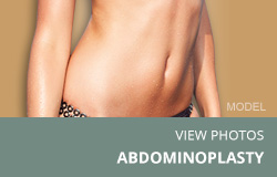 Tiles-Abdominoplasty2